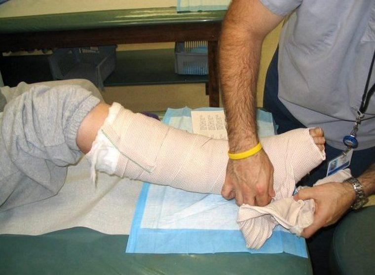 Хлопчик зламав ногу у школі
