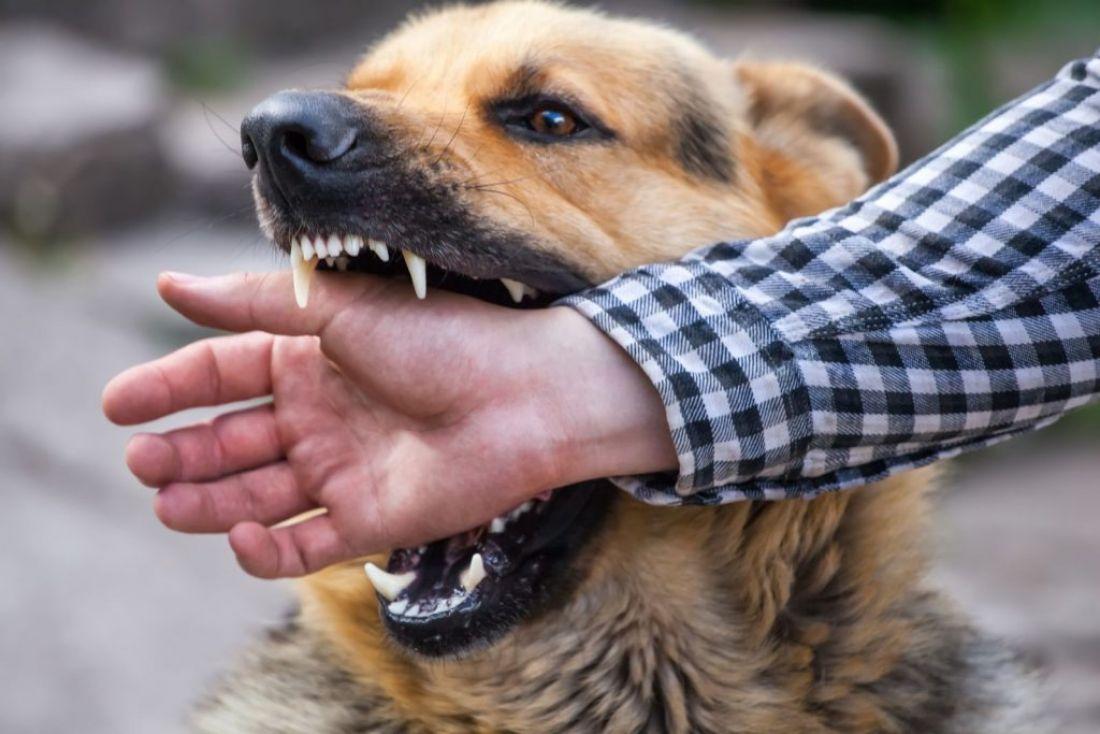 На беззахисну дитину напала сусідська собака