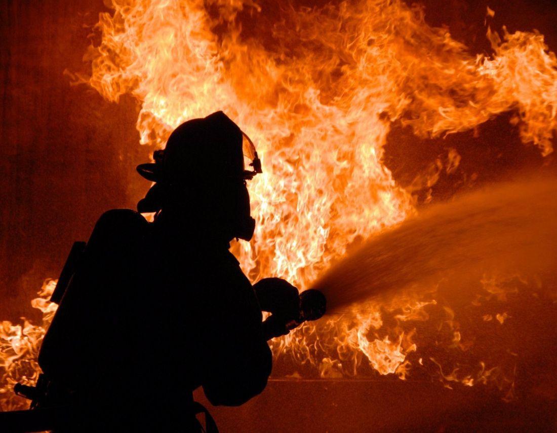 На Тернопільщині обгорів чоловік, який намагався загасити пожежу у своєму будинку
